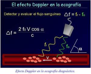 doppler_1_2